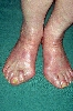 diagnostic: Malformations of Extremities