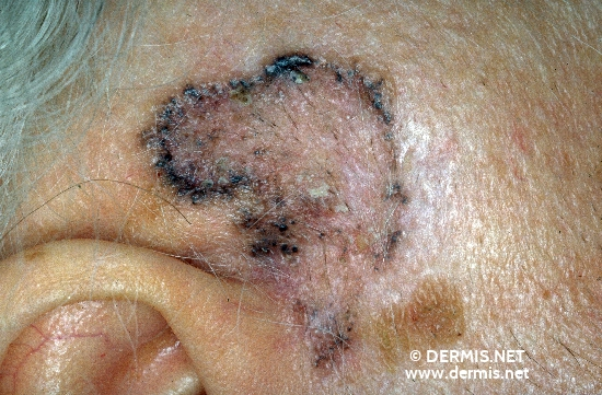 diagnosis: Pigmented Basal Cell Carcinoma
