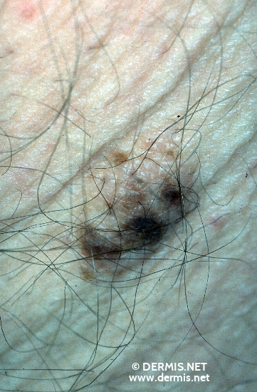 diagnosis: Junctional Nevus