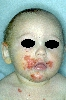 diagnostic: Impetigo Contagiosa