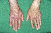 Diagnose: Acrodermatitis chronica atrophicans Herxheimer