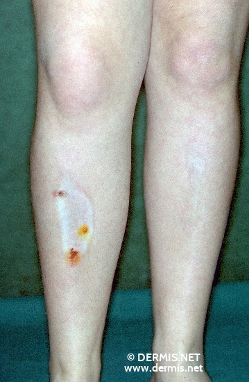 Diagnose: Morphea