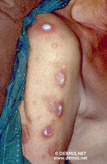 diagnosis: Reactive Perforating Collagenosis
