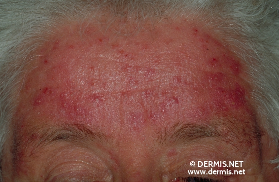 diagnostic: Rosacea