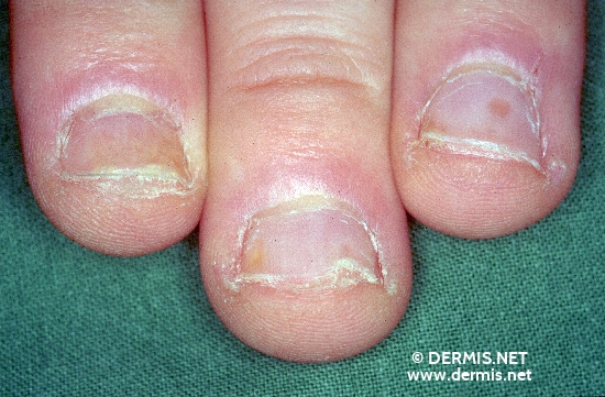 Diagnose: Nagelpsoriasis