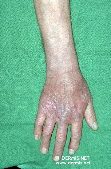 diagnosis: Acrodermatitis Chronica Atrophicans Herxheimer