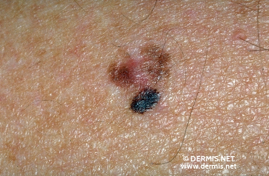 diagnosis: Superficial Spreading Melanoma (SSM)