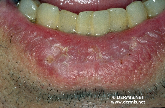 diagnosis: Actinic Cheilitis