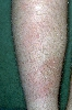 localisation: tibial, Diagnose: Erythema nodosum