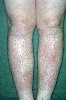 localisation: tibial, diagnosis: Erythema Nodosum