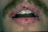 localisation: lips (skin), diagnosis: Stevens-Johnson Syndrome