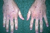 localisation: hands, diagnosis: Stevens-Johnson Syndrome