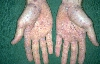 localisation: palms, diagnosis: Stevens-Johnson Syndrome