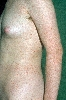 Lokalisation: Rumpf, Diagnose: Pityriasis lichenoides chronica