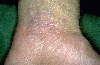 localisation: wrists, diagnosis: Lichen Planus