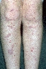 Lokalisation: tibial, Diagnose: Lichen ruber planus