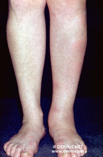 localisation: tibial diagnosis: Erythema Nodosum