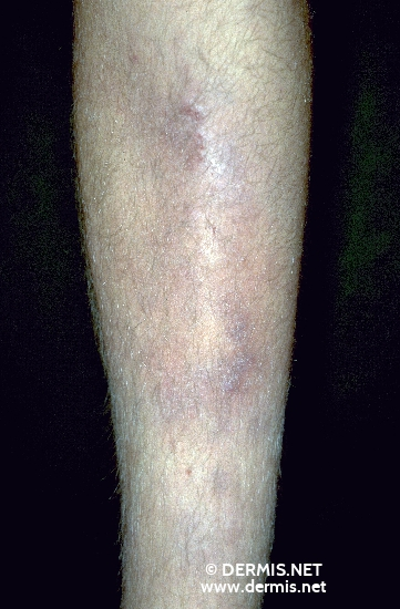 localisation: lower leg diagnosis: Erythema Nodosum