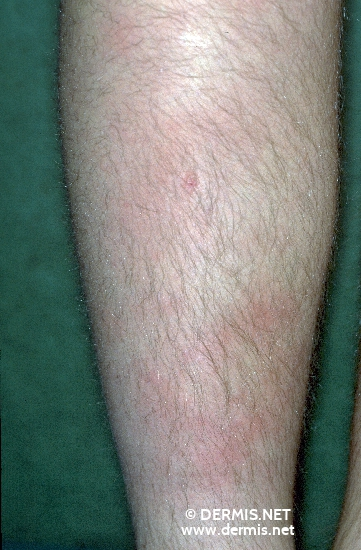 localisation: tibial diagnostic: Erythema Nodosum