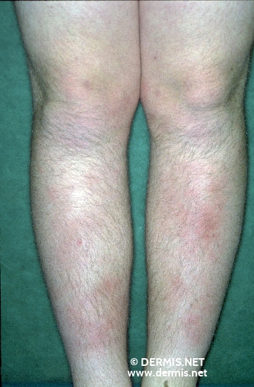 localisation: tibial Diagnose: Erythema nodosum