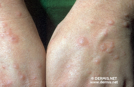 localisation: back of the hands diagnosis: Erythema Exsudativum Multiforme, Minor Form