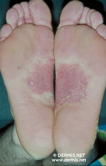 localisation: sole diagnosis: Psoriasis Palmoplantaris