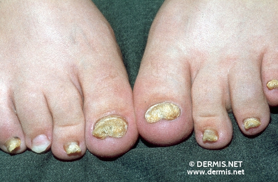 localisation: toenail diagnosis: Psoriasis Vulgaris, Nail Changes