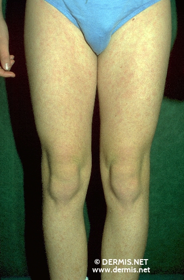 localisation: upper leg diagnosis: Pityriasis Rosea
