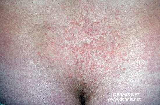 localisation: Unterbauch Diagnose: Pityriasis rosea