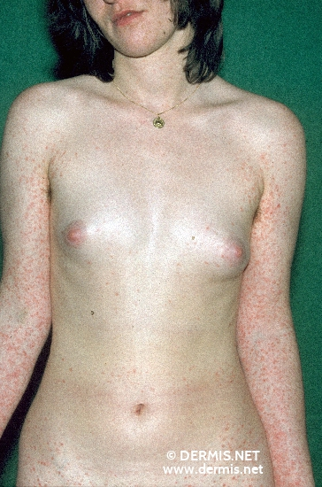 localisation: total body view diagnosis: Pityriasis Lichenoides Chronica