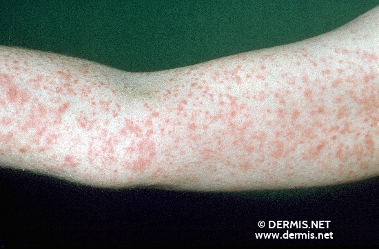 localisation: arms diagnosis: Pityriasis Lichenoides Chronica