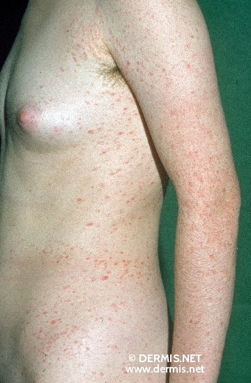 localisation: trunk diagnosis: Pityriasis Lichenoides Chronica