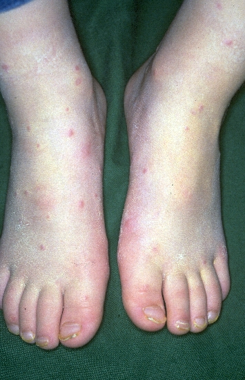 localisation: feet diagnosis: Acrodermatitis Papulosa Eruptiva Infantilis