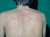 localisation: back, diagnosis: Acne Conglobata