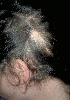 localisation: head, diagnosis: Alopecia Areata