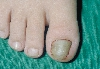 localisation: ongle du pied, diagnostic: Onychogryphose