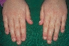 localisation: Fingernagel, Diagnose: Twenty-Nail-Dystrophy