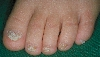 localisation: Zehennagel, Diagnose: Twenty-Nail-Dystrophy