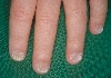 localisation: Nagelplatte (Fingerrnagel), Nagelplatte (Zehennagel), Diagnose: Twenty-Nail-Dystrophy