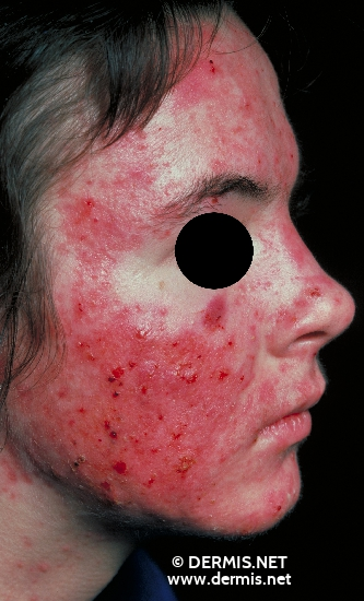 localisation: face diagnosis: Acne Vulgaris