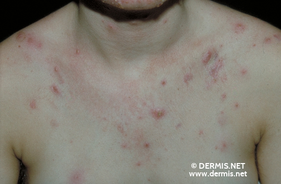 localisation: chest diagnosis: Acne Cystica