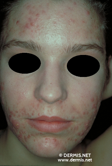 localisation: face diagnosis: Acne Papulopustulosa