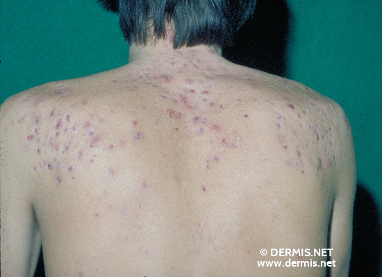 localisation: back diagnosis: Acne Conglobata