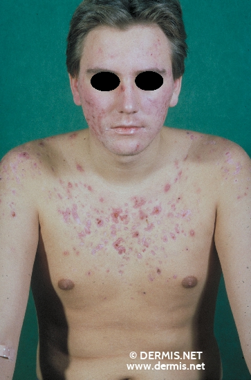 localisation: face chest diagnosis: Acne Fulminans
