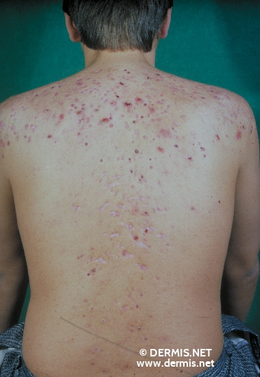 localisation: back diagnosis: Acne Fulminans