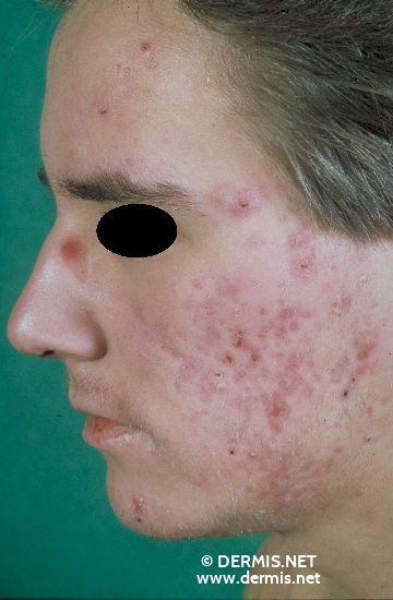 localisation: face diagnosis: Acne Fulminans