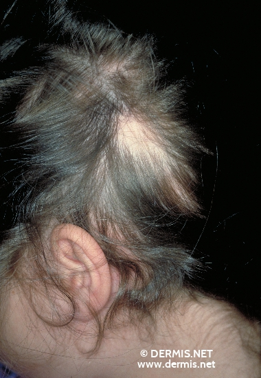 localisation: head diagnosis: Alopecia Areata