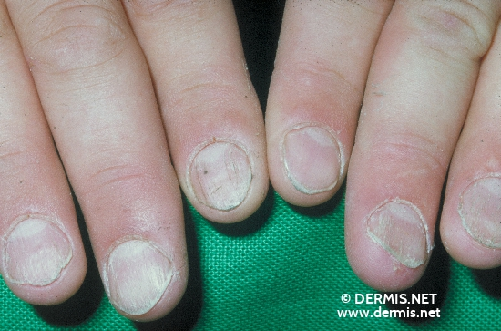 localisation: fingernail toenail diagnosis: Twenty-Nail-Dystrophy