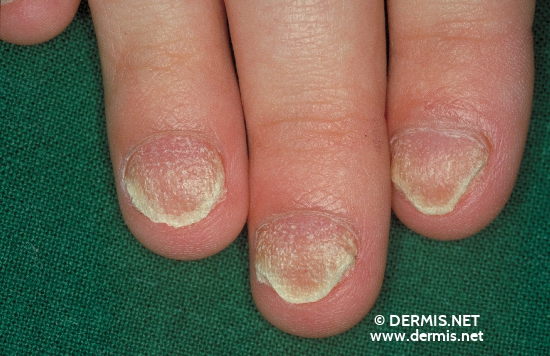 localisation: fingernail diagnosis: Twenty-Nail-Dystrophy