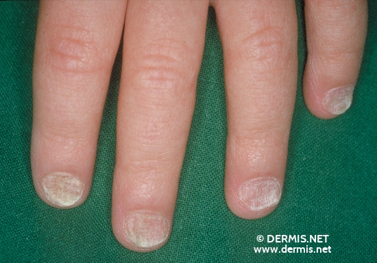 localisation: nail plate of the finger nail plate (toe nail) diagnosis: Twenty-Nail-Dystrophy